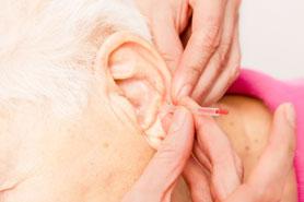 chinesische_akupunktur_therapie_arzt_bayreuth